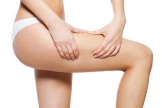 Conoce la mesoterapia corporal, el remedio para la celulitis